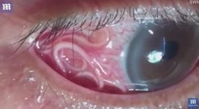 Graphic : Moment 15cm Long Worm is Removed From Mans Eye